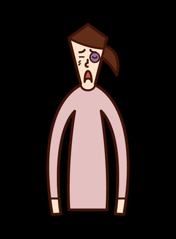 アキレス腱断裂(女性)のイラスト