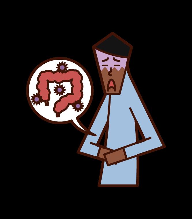 大腸の病気(男性)のイラスト