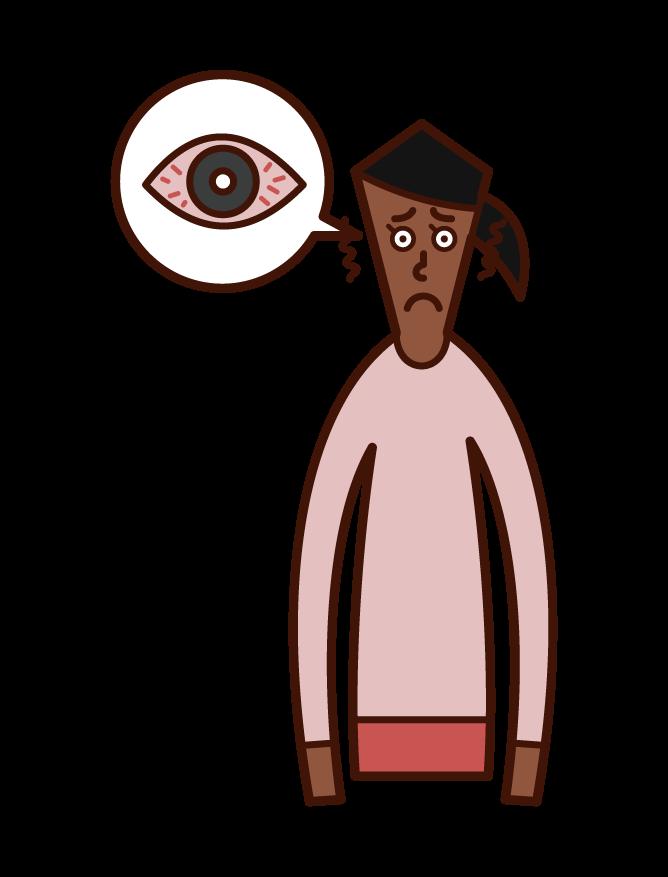 각막염, 결막염 및 눈 충혈 (여성) 그림