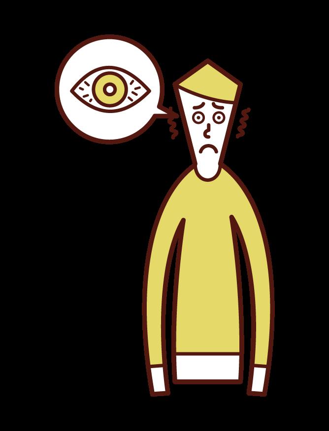 각막염, 결막염 및 눈 충혈 (남성) 그림