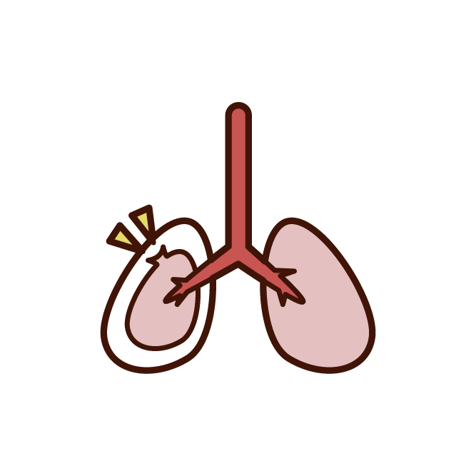 Unhealthy Lung Illustration