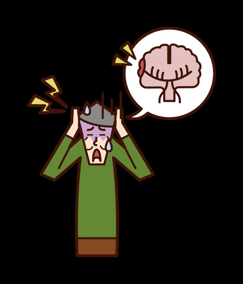 Illustration of subarachnoid hemorrhage (male)
