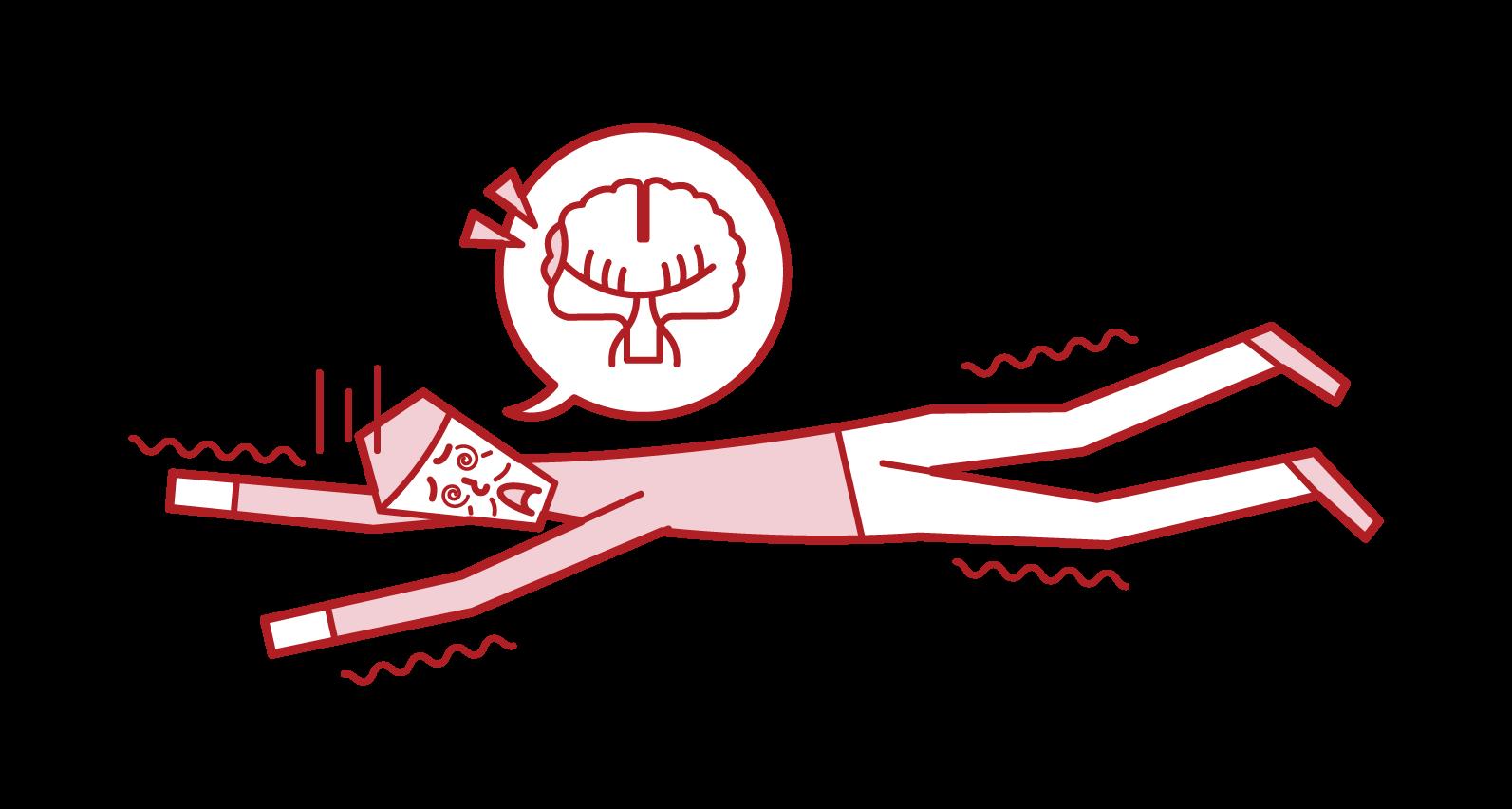Illustration of subarachnoid hemorrhage / cerebral infarction (male)