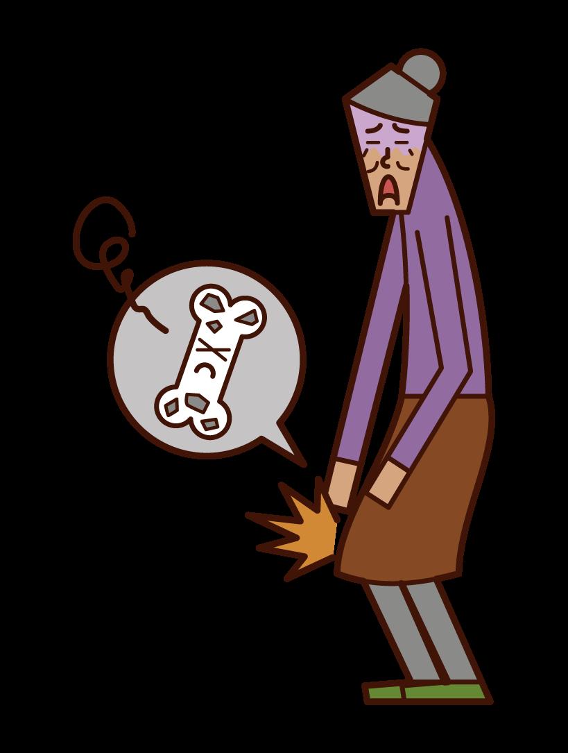 Illustration of osteoporosis (female)