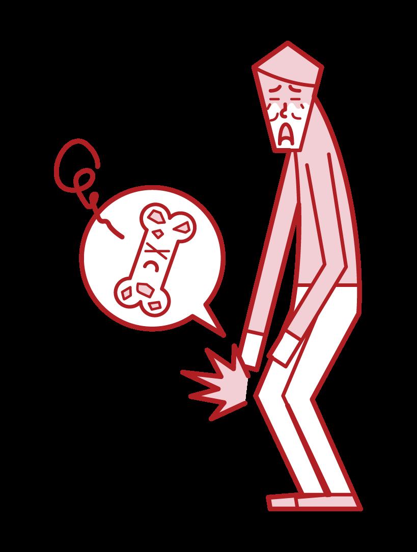 Illustration of osteoporosis (male)