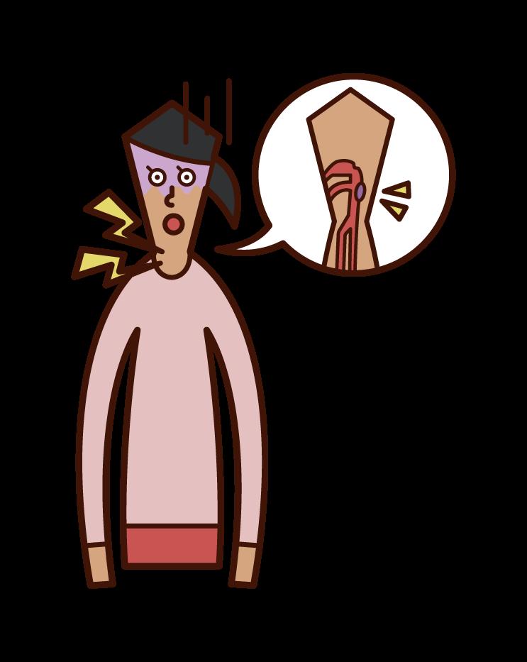Illustration of pharyngeal cancer (female)