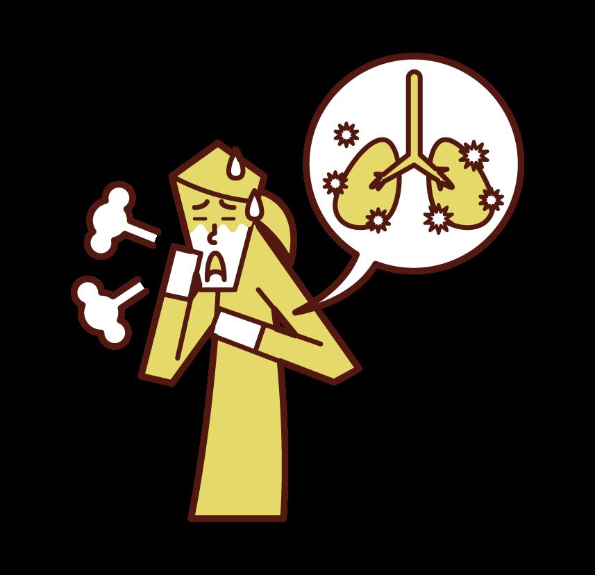 Illustration of pneumonia (female)