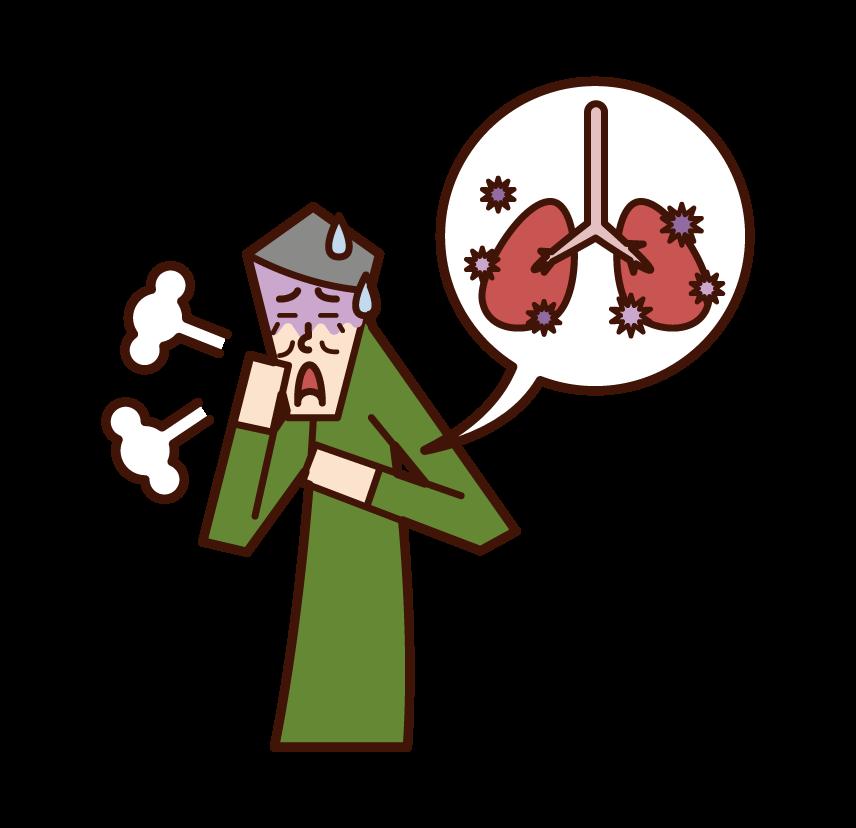 肺炎(男性)のイラスト