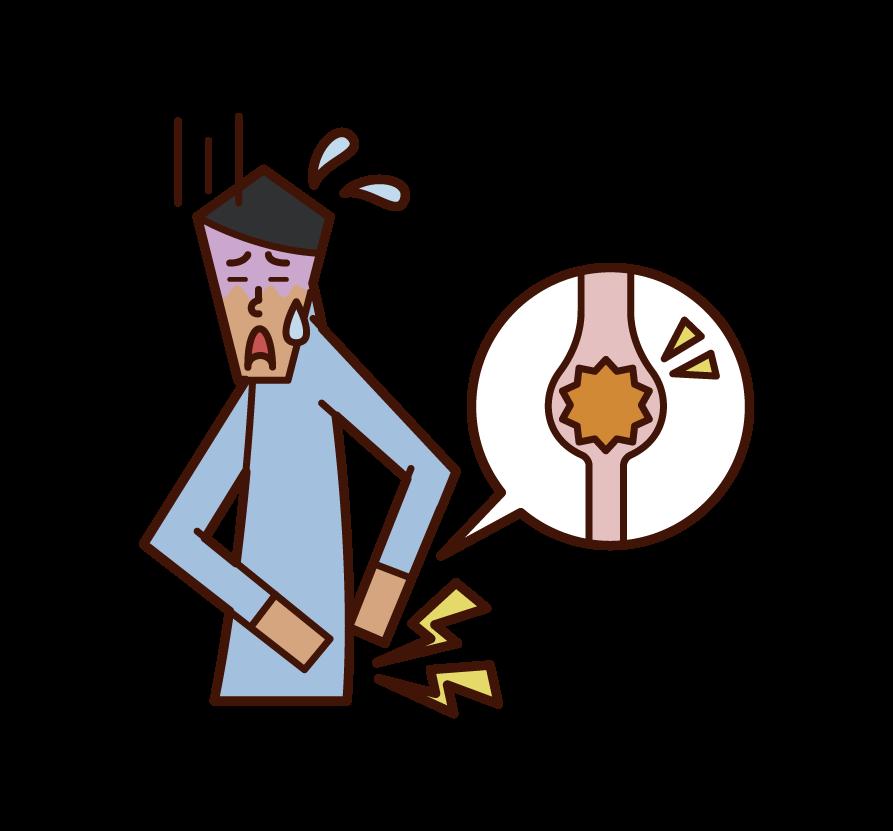 Illustration of urinary escones (male)
