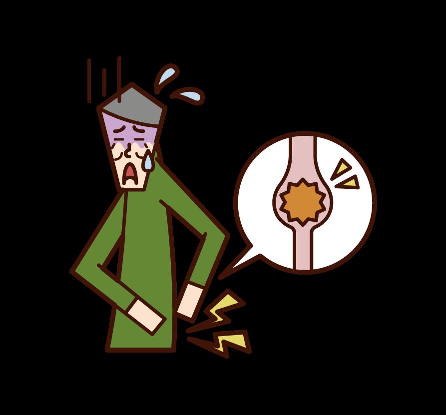 Uterine fibroid illustration