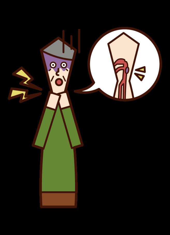 咽癌(男性)插圖
