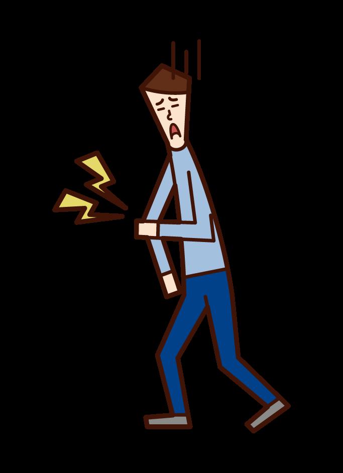 팔꿈치 통증과 상완 골의 원추형 골절 (남성)의 그림