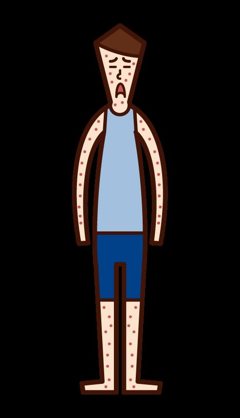 水疱瘡・水痘(男子)のイラスト
