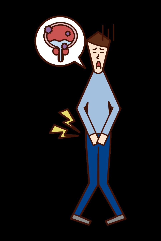 膀胱炎・膀胱癌(男性)のイラスト