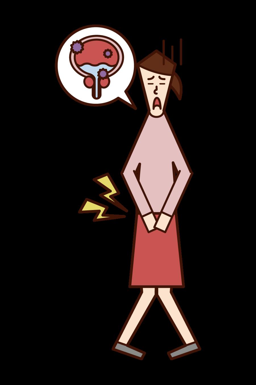 膀胱炎・膀胱癌(女性)のイラスト