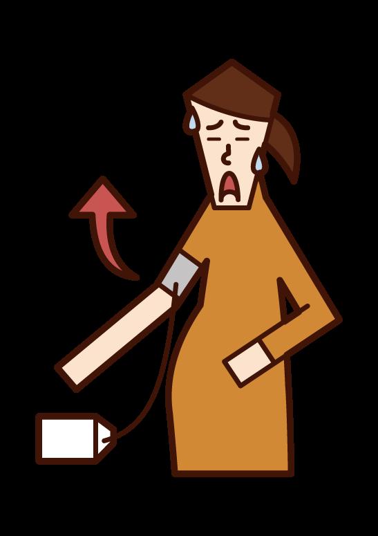 妊娠高血壓綜合征(女性)插圖