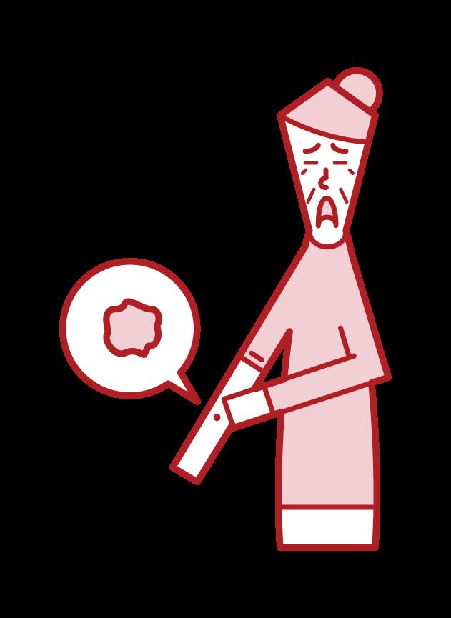 Illustration of skin cancer (grandmother)
