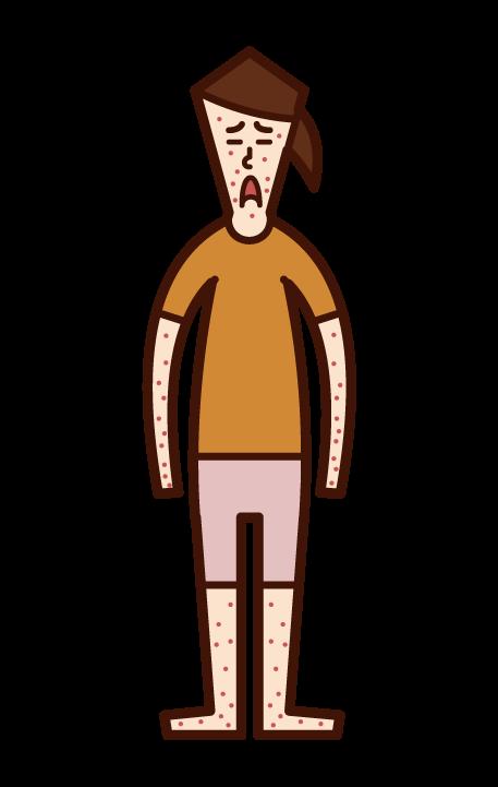 風疹・麻しん・はしか・湿疹(女子)のイラスト