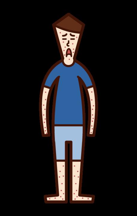 風疹・麻しん・はしか・湿疹(男子)のイラスト