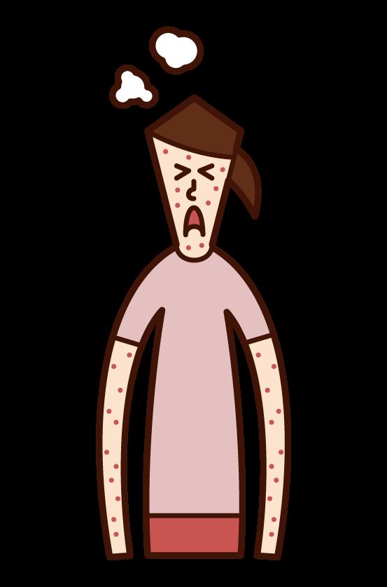 風疹・麻しん・はしか・湿疹(女性)のイラスト