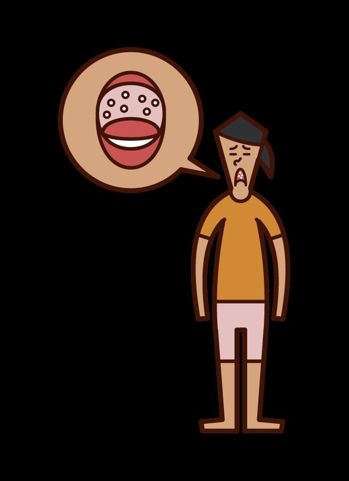 Illustration of Herpangina (women)
