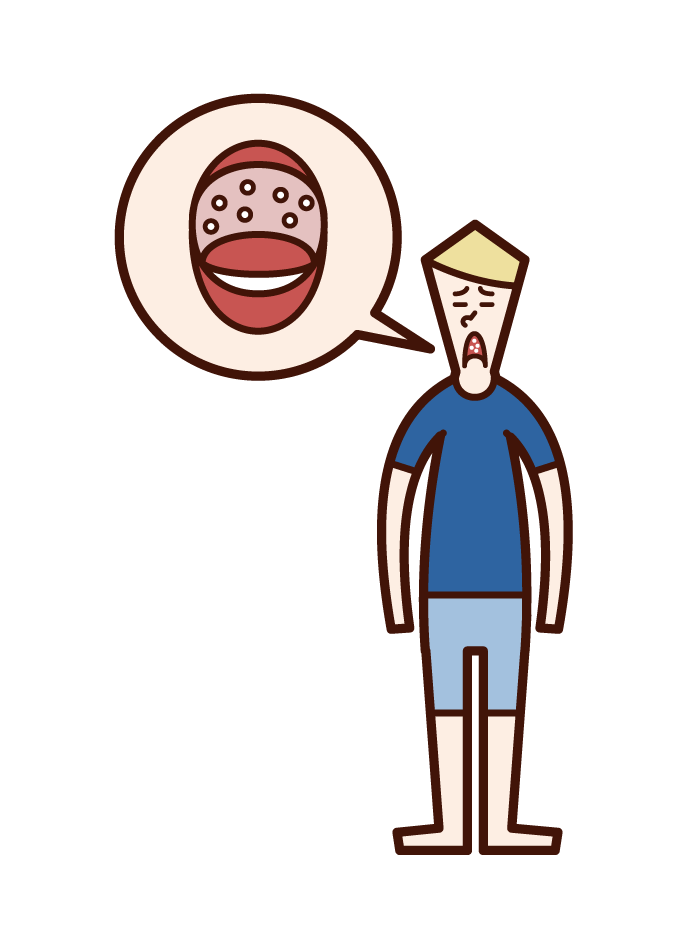 Illustration of Herpangina (men)