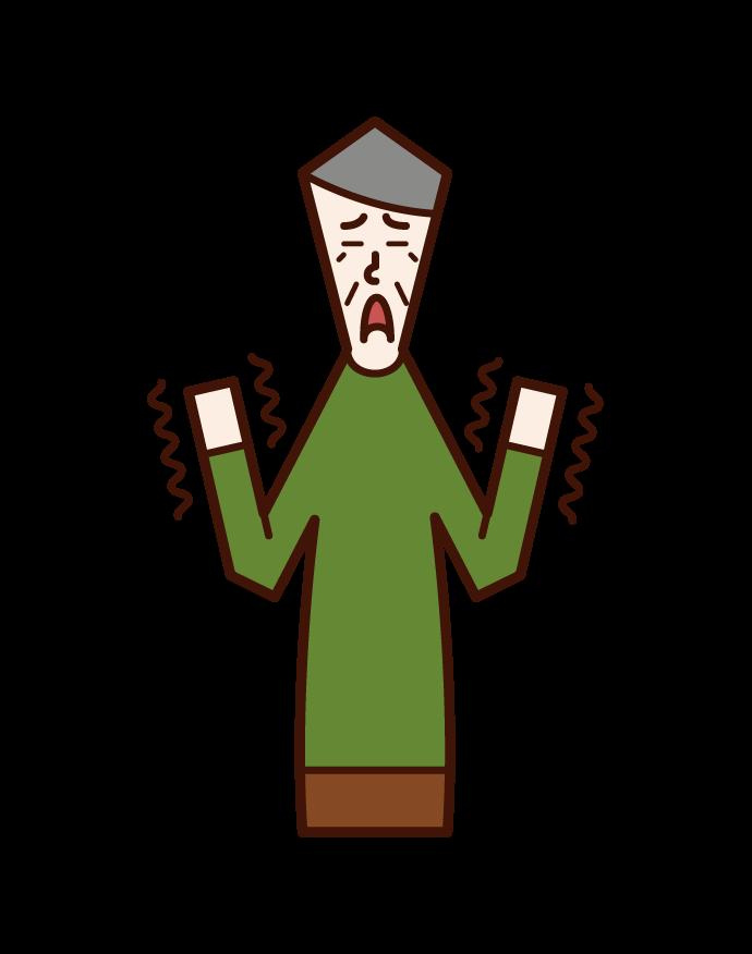 Illustration of hand tremor (male)