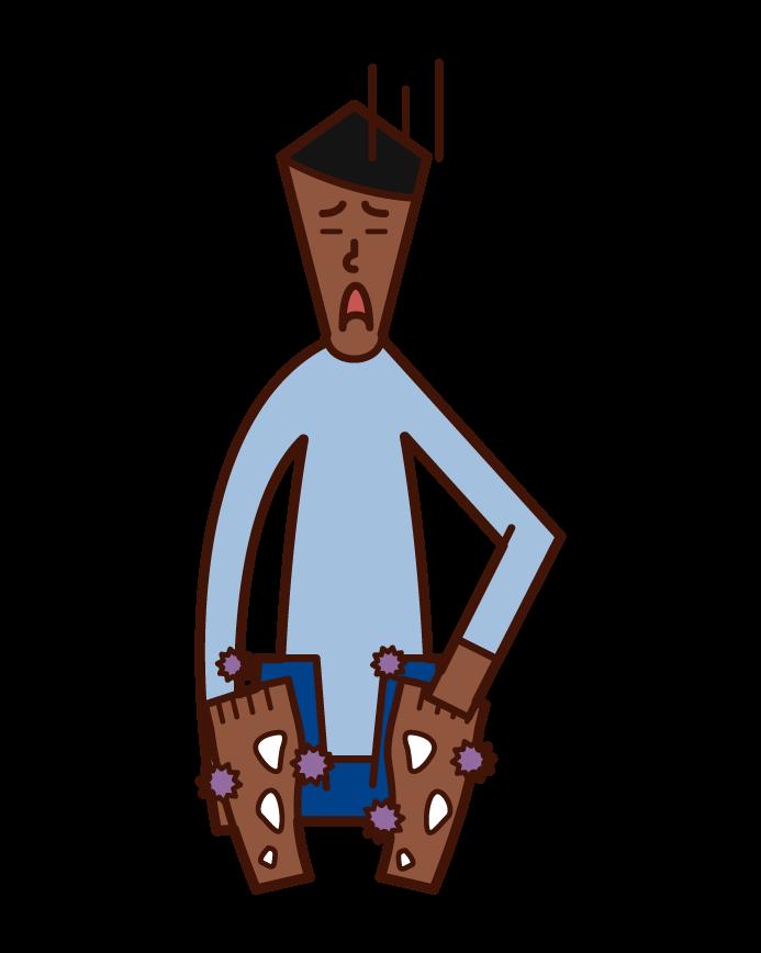 水虫・白癬(男性)のイラスト