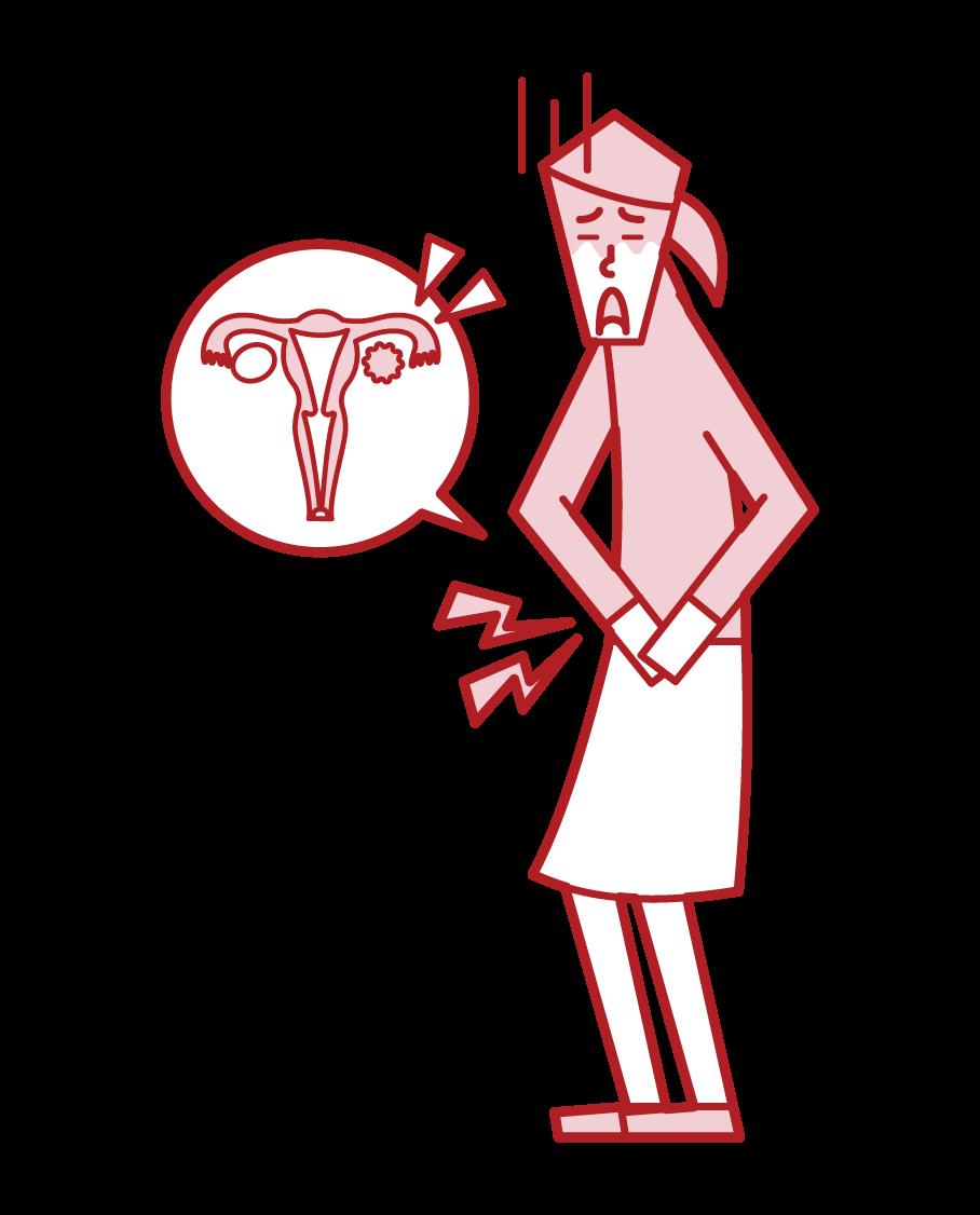 난소암 (여성) 일러스트