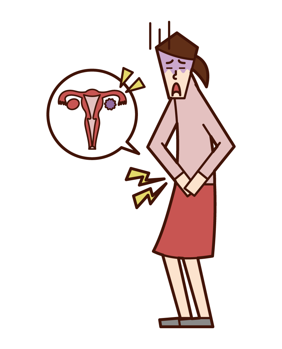 Illustration of ovarian cancer (female)