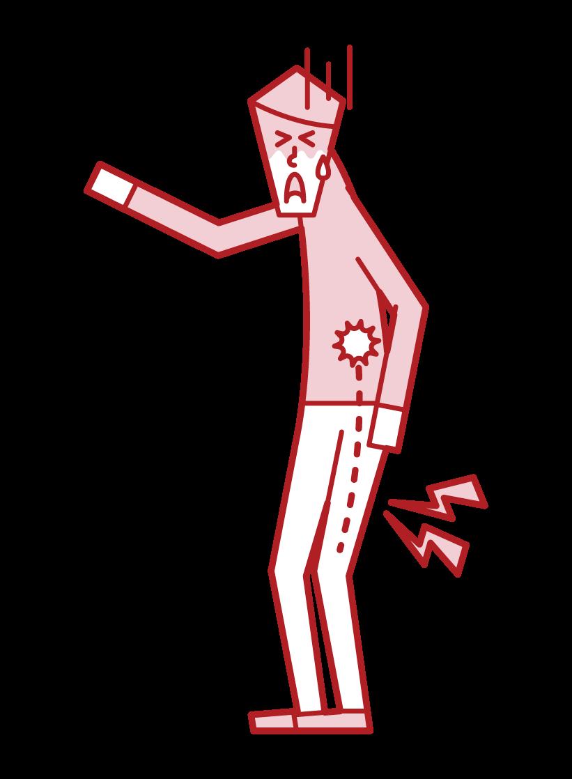 Illustration of sciatiac neuralgia and lumbar disc herniated plate (male)