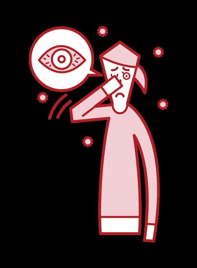 アレルギー性結膜炎(女性)のイラスト