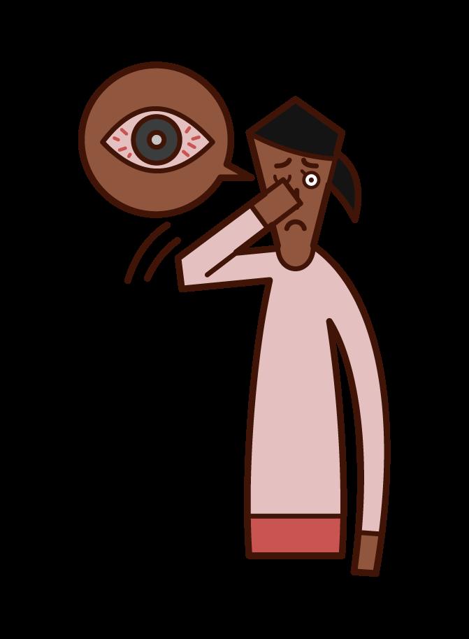 角膜炎・結膜炎・目の充血(女性)のイラスト