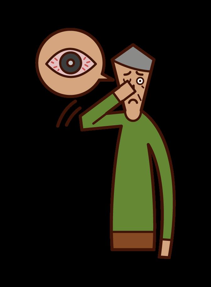 角膜炎・結膜炎・目の充血(おじいさん)のイラスト