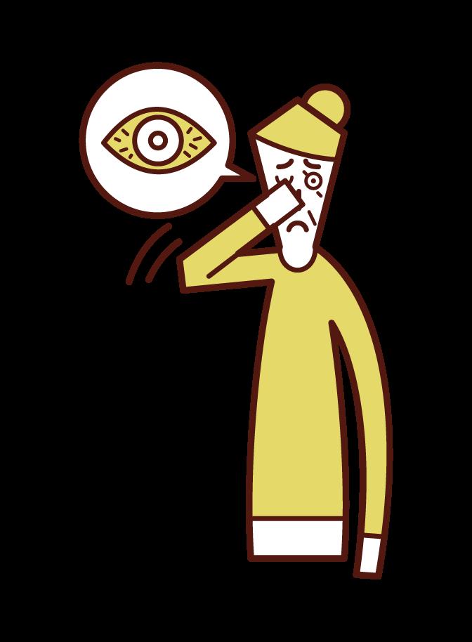 Illustration of keratitis, conjunctivitis, eye hypersediosis (grandmother)