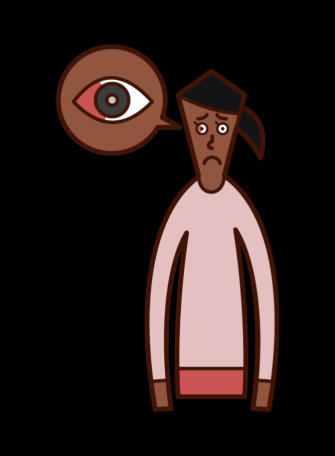 Illustration of subjunctival hemorrhage (female)