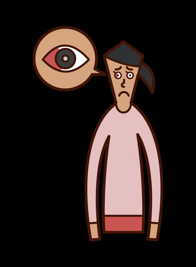 결막 하 출혈 (여성)의 그림