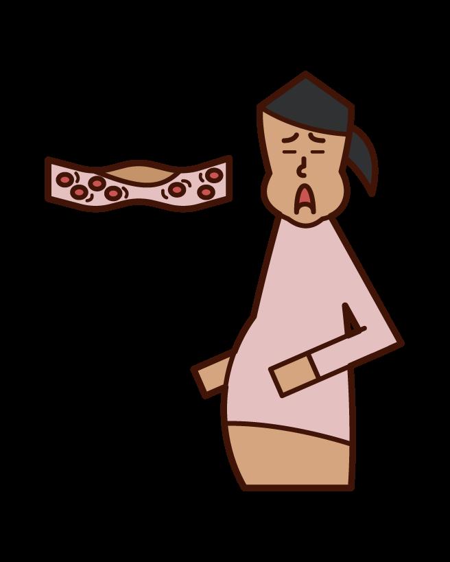 Illustration of blood (female) of dyslipidemia, hyperlipidemia, muddy