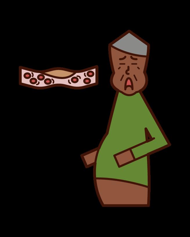 Illustration of blood (old father) of dyslipidemia, hyperlipidemia, drodoro