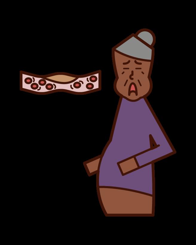 Illustration of blood (grandmother) of dyslipidemia, hyperlipidemia, muddy