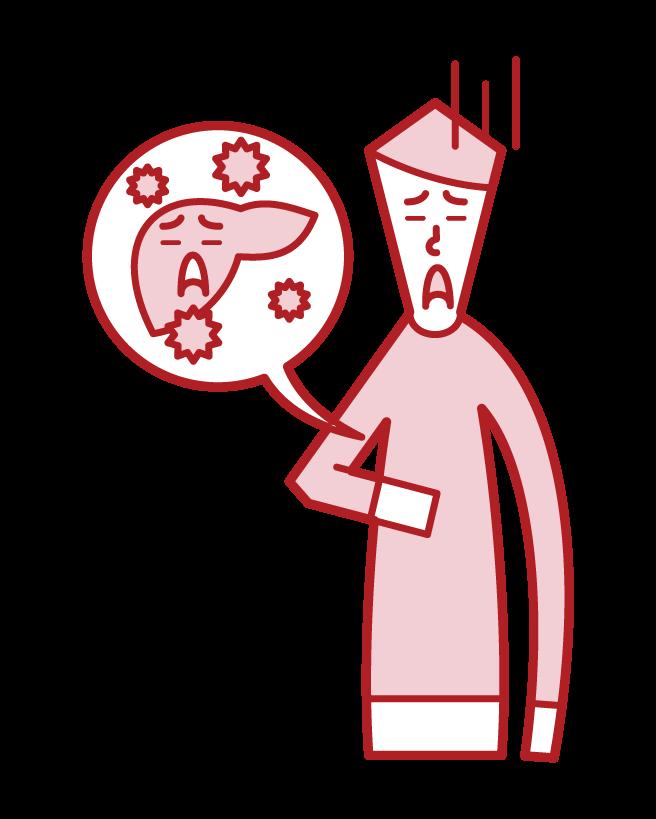 A型肝炎・B型肝炎・C型肝炎(男性)のイラスト