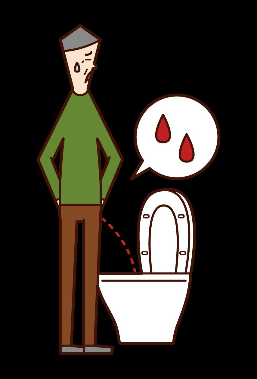 혈뇨와 부신염의 그림