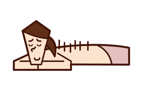 Illustration of a woman receiving acupuncture