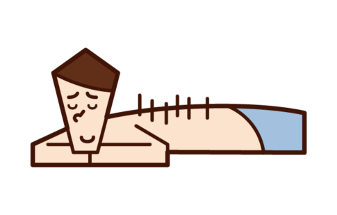 Illustration of a man receiving acupuncture